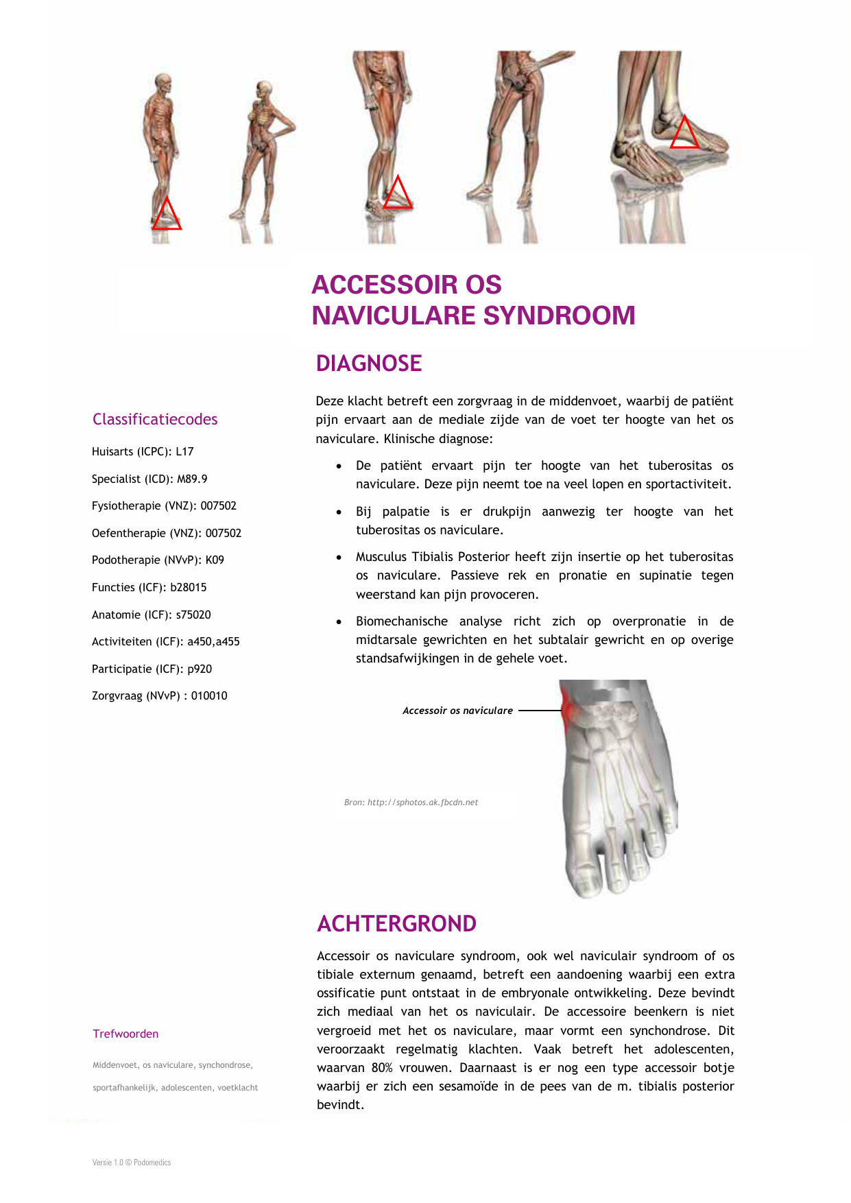 5.1: ACCESSOIR OS NAVICULARE SYNDROOM