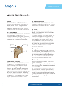 Laterale clavicula resectie