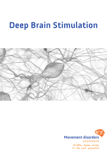 Deep Brain Stimulation - Movement Disorders Groningen