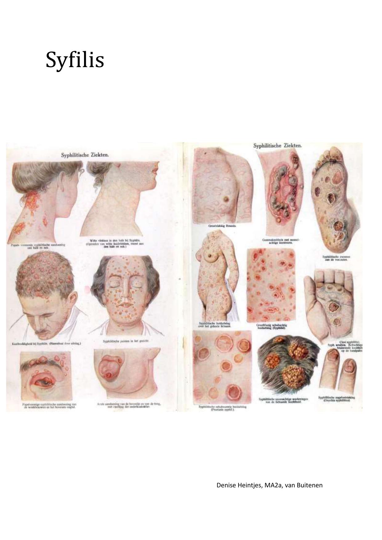 Syfilis Syphilis (Treponema