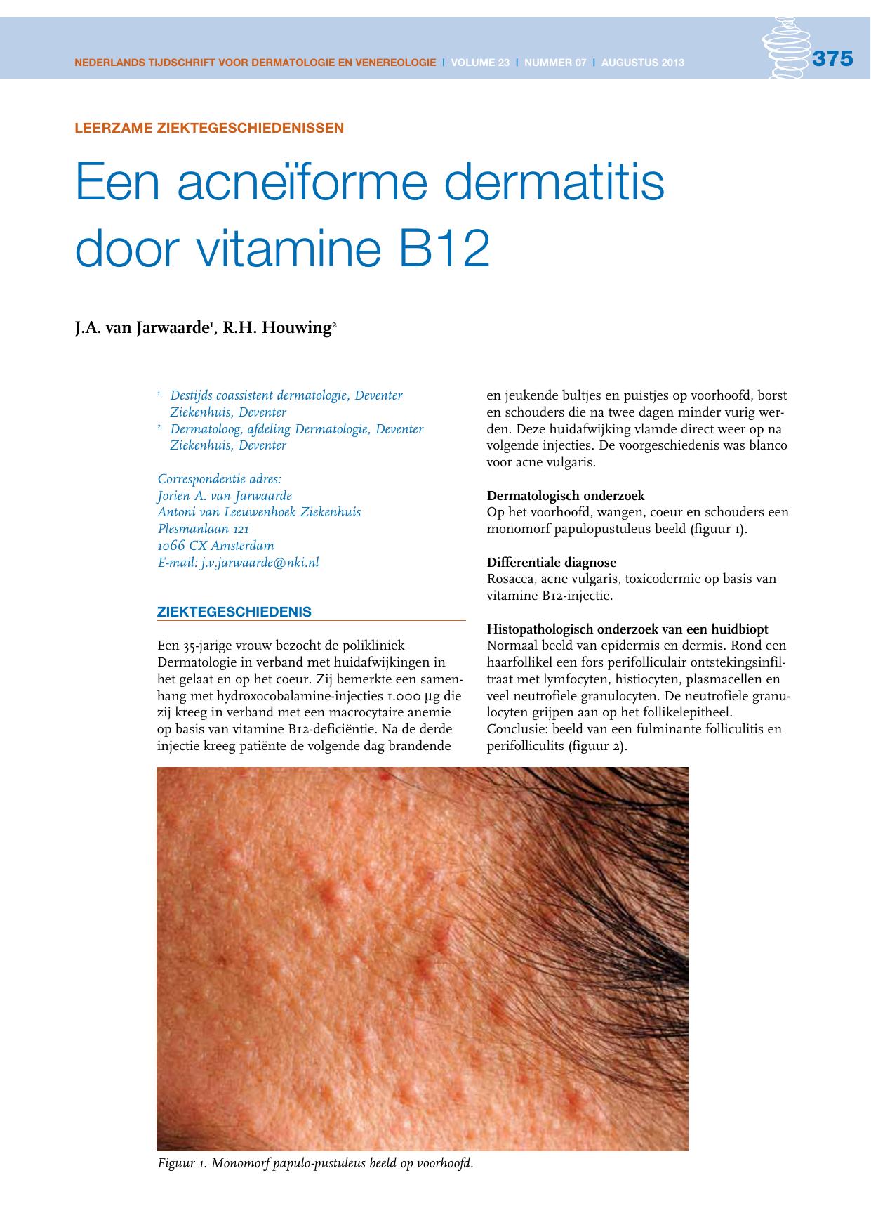 Een Acneïforme Dermatitis Door Vitamine B12