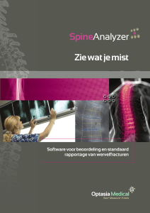 SpineAnalyzer - Optasia Medical